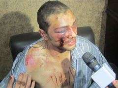 An Egyptian Civilian got tortured in Rabaa Square by Brotherhood - ask him who tortured him?